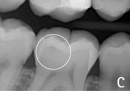 diagnodent, sâu răng