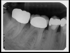 phim cận chóp, chụp răng