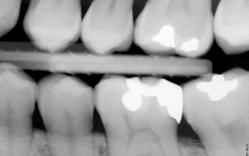 cervical burnout, thấu quang cổ răng