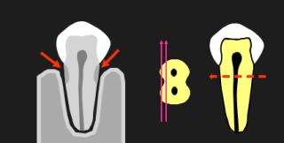 thấu quang, sâu răng