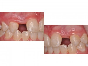 phuc hinh tam implant 2