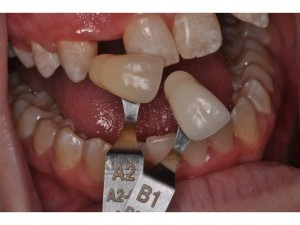 phuc hinh tam implant 3