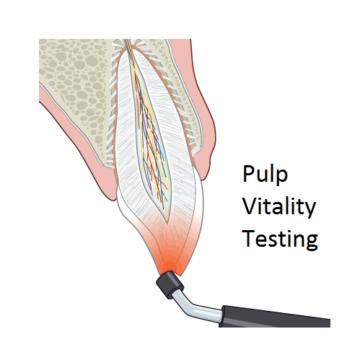pulp test