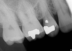 endodontics, cracked tooth, fractured tooth, root canal