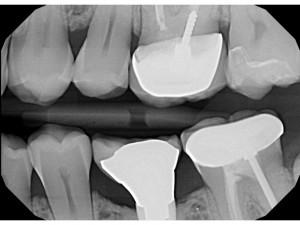 implant-emergence-profile-300x225